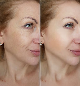 face woman wrinkles   before and after t