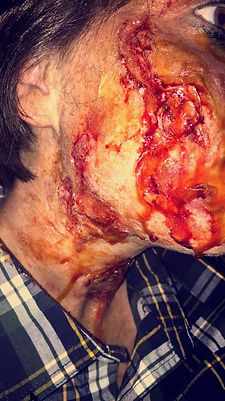 special effects makeup. special makeup effects. prosthetic makeup. wound. blood and gore