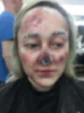 special effects makeup. special makeup effects. prosthetic makeup. wound. blood and gore. frost bite