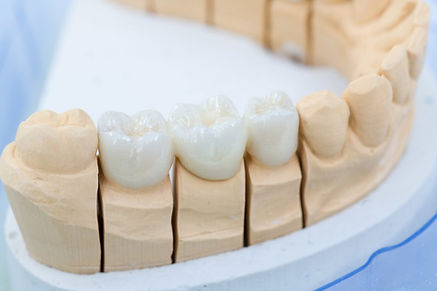 Using-Super-Glue-To-Fix-Your-Dentures-Th