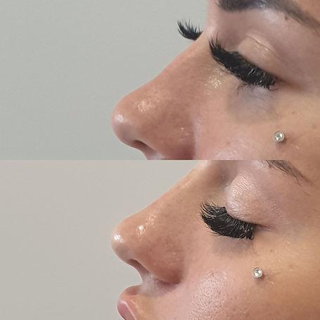 nose filler brisbane