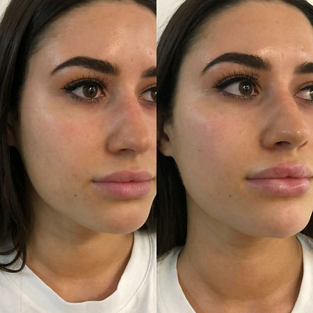 lips, cheek & jaw filler brisbane