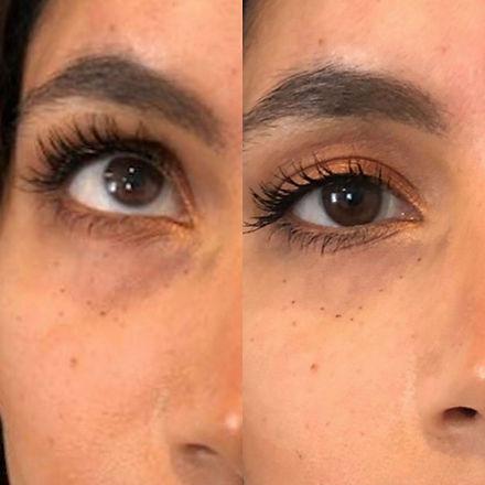 under eye filler brisbane