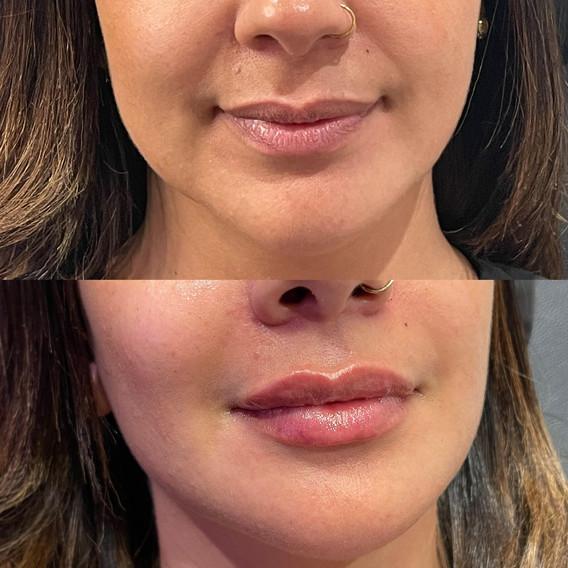 lip filler brisbane before after