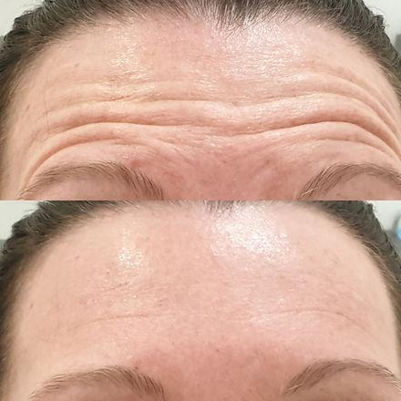 forehead antiwrinkle treatment