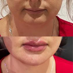 lips & chin filler brisbane