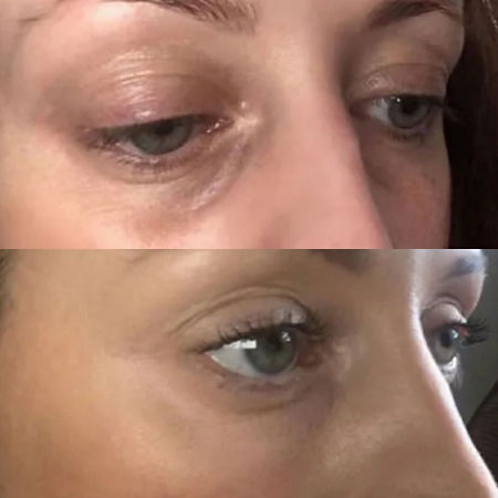 under eye filler before & after brisbane