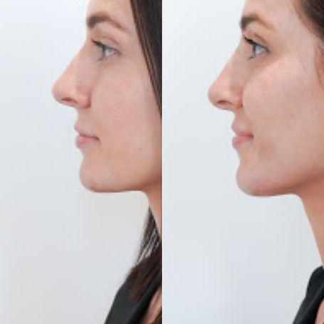 liquid nose job brisbane