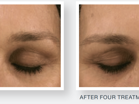 How can Microneedling help with fine lines and wrinkles?