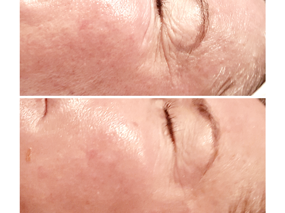 Microneedling for fine lines