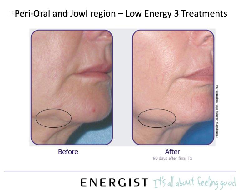 Neogen - skin tightening and lifting
