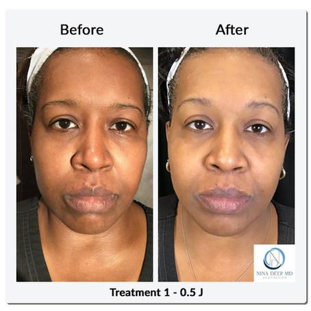 NeoGen Plasma:  A Safe Treatment for Darker Skin Types