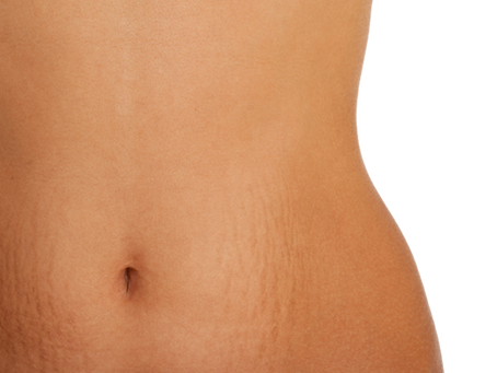 Can you rid yourself of Stretch marks