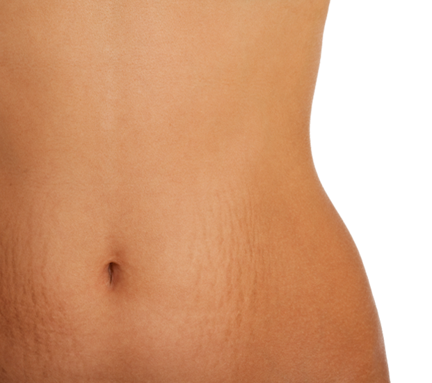 Stretch mark treatment with Microneedling