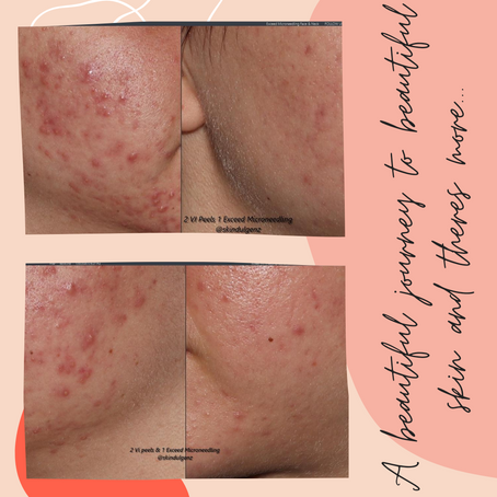 When two or more skin care technologies are combined to achieve a desired result!!!