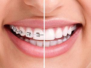 aparelho-dental.jpg