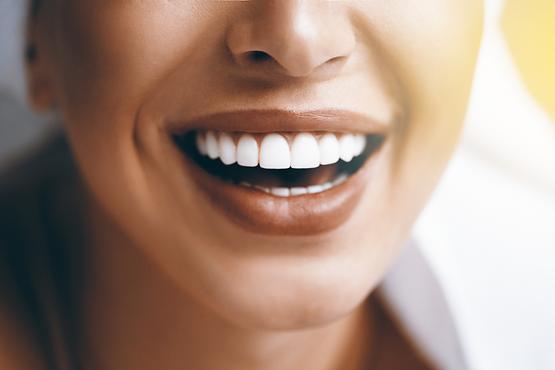 Imersão em Clareamento e Resina Composta para Dentes Anteriores Clareados e não Clareados