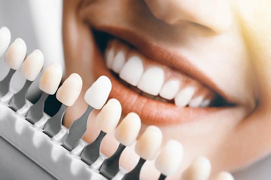 Odontologia Estética: Restaurações diretas, indiretas e laminados cerâmicos