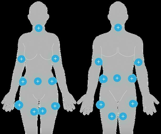 Body Diagrams.png