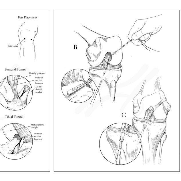 ACL Reconstruction: Arthroscopic Graft Placement