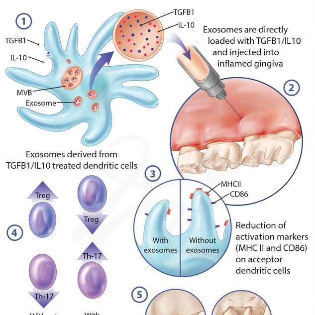 Exosomes Equipped with Immunoregulatory Cargo Inhibit Oral Degenerative Bone Disease in vivo