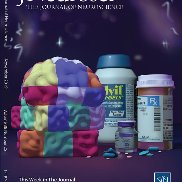 Acute Migraine Headache: Treatment Strategies