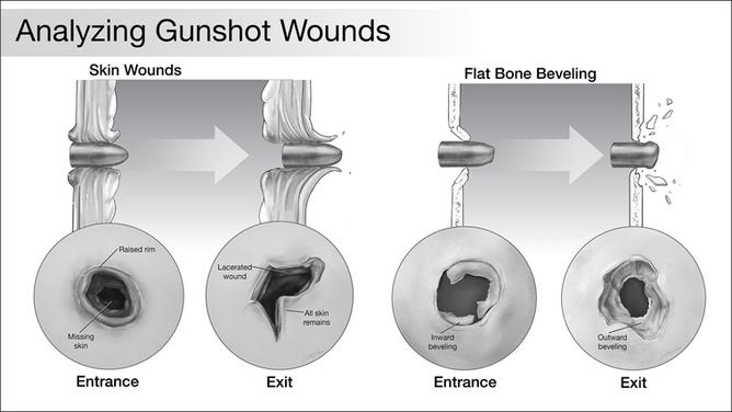 Analyzing Gunshot Wounds