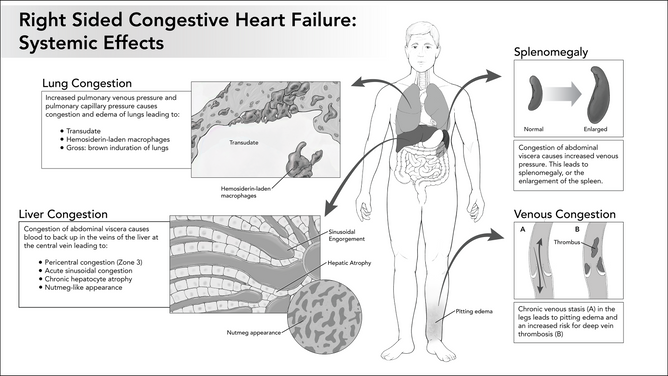 Systemic Effects of Right Sided Congestive Heart Failure