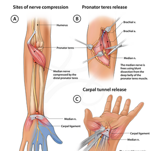 Jane Doe: Pronator Teres and Carpal Tunnel Release