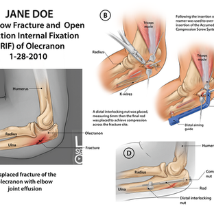 Jane Doe: Left Elbow Fracture and Repair