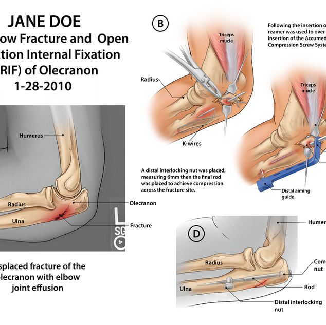 Jane Doe: Left Elbow Fracture and Repair