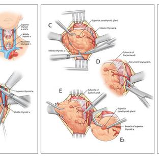 Left Thyroid Lobectomy
