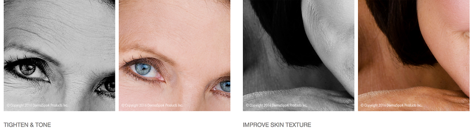 MICRO needling tighten and tone improve skin texture