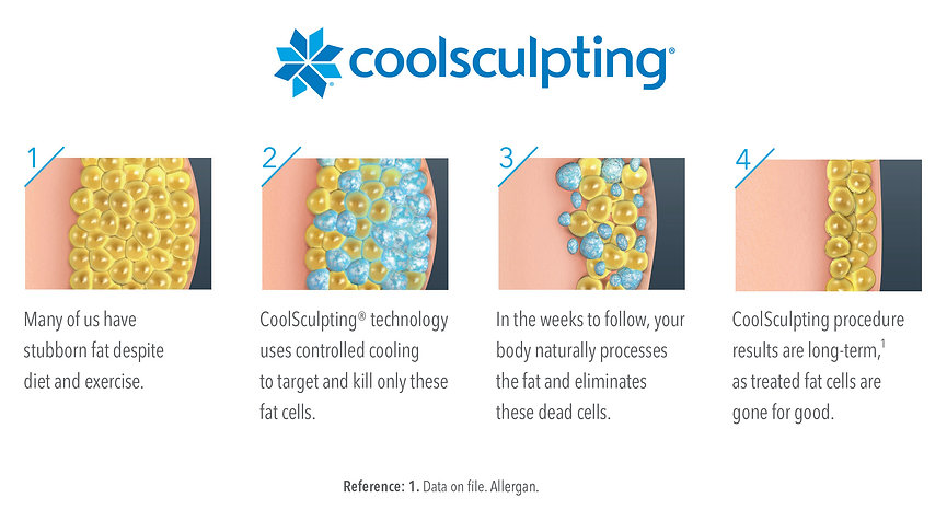 7-Illustration-how-coolsculpting-works-M