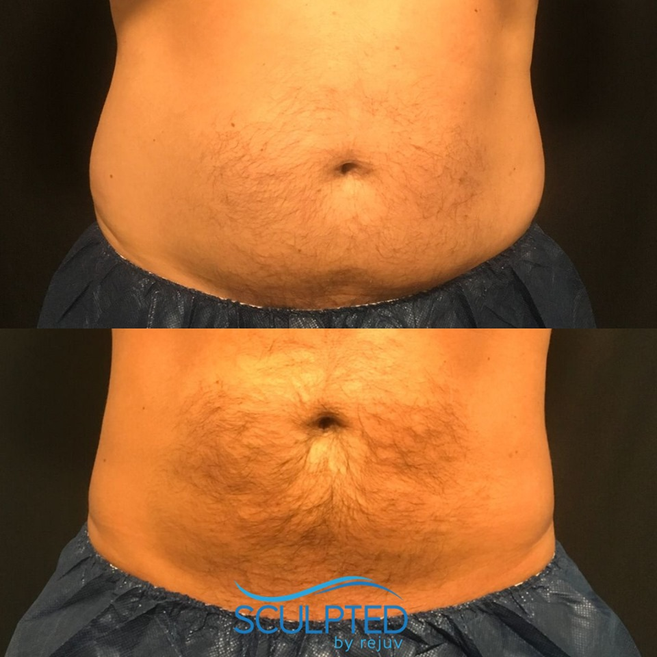 CoolSculpting is for Men and Women