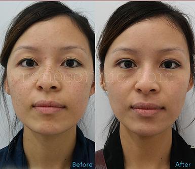 Freckle laser
