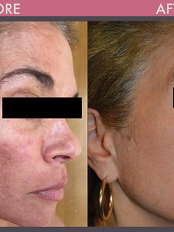 Berman Cosmetic Surgery and Skincare Center