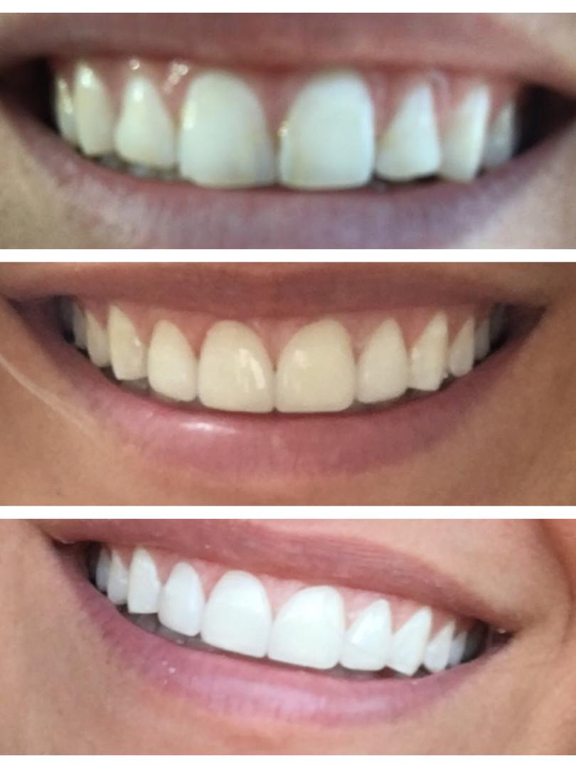 Lansdowne Family Dental