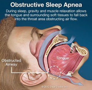 obstructive-sleep-apnea-300x293.jpg