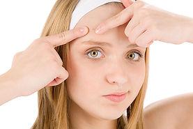 Tratamento anti acne