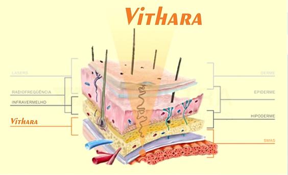 Vithara ultrassom microfocado