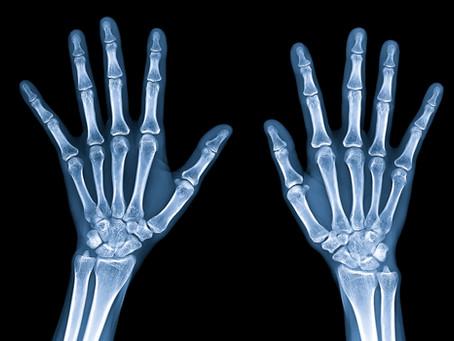 Een röntgenfoto van een team, kan dat?