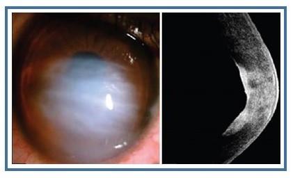 Hidropsia e cicatriz da córnea