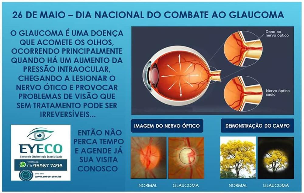 Combate ao Glaucoma