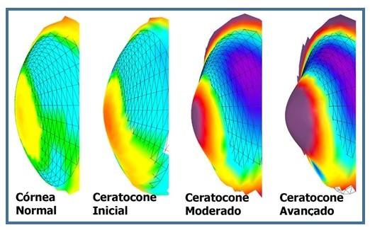 Imagens comparativas de córnea normal com ceratocone inicial a avançado