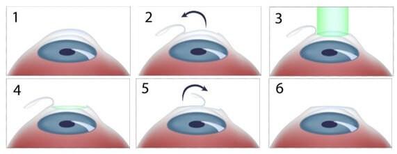Etapas da Cirurgias LASIK