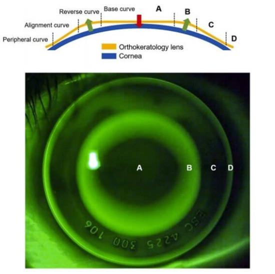 Esquema didático in situo da lente de Ortoceratologia