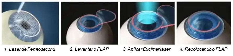 Cirurgia Refrativa FEMTO-LASIK