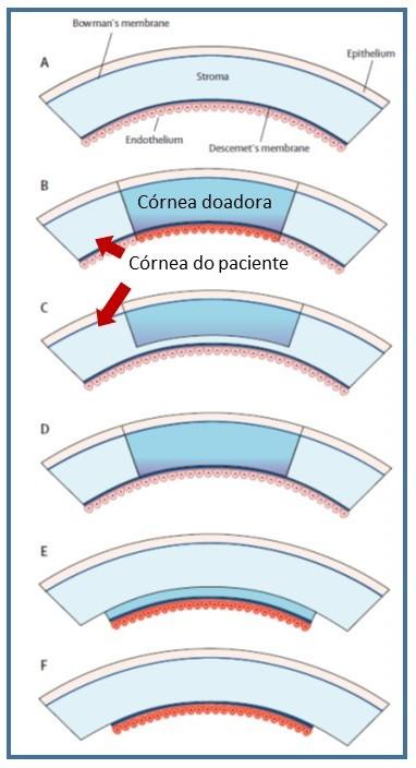 Comparação entre os diferentes tipos de transplante de córnea