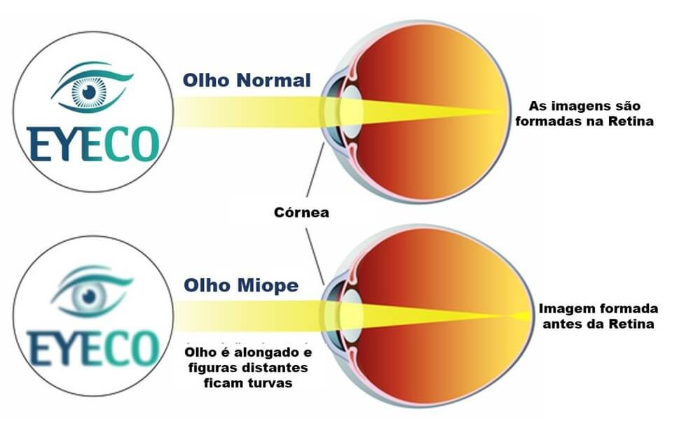 Imagem no olho normal e miopia